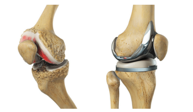 knee replacement hospitals