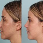 Regeneration Therapy and Mini Lift for a Younger Looking You