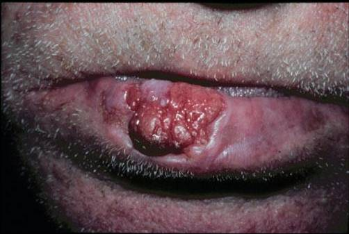 Cancer Of The Lip