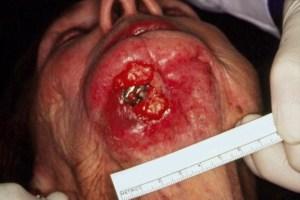 Measuring Oral Cancer