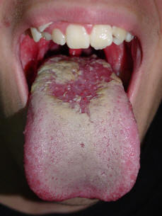 Oral Cancer Of The Tongue