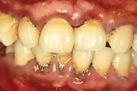 Yellow Teeth Smokeless Tobacco