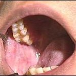 Cancer Pictures - Cancer of the Mouth, Lip & Tongue ...Early Signs Of Oral Cancer From Dipping