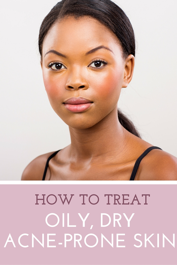how-to-treat-oily-dry-skin-with-acne