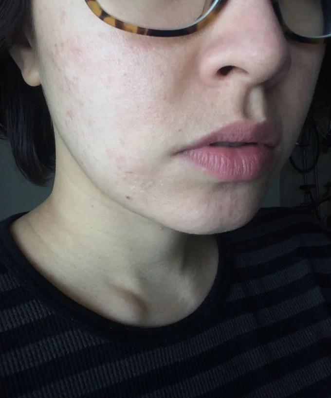 skin peeling and dryness after salicylic acid peel