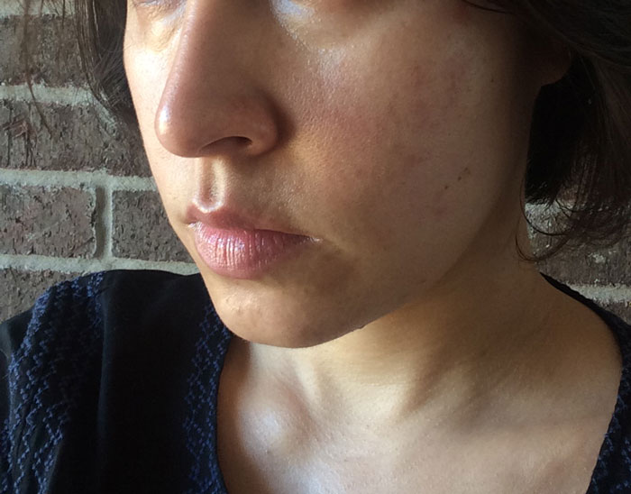 Facial redness peeling skin