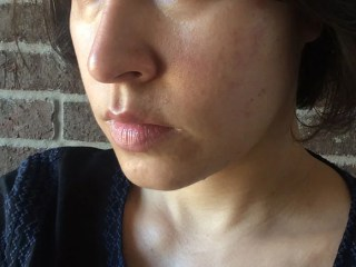 skin redness after salicylic acid peel