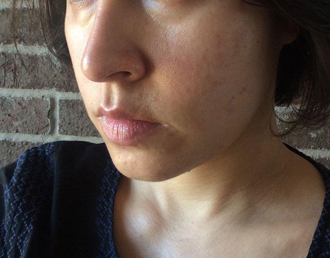skin redness after salicylic acid peel