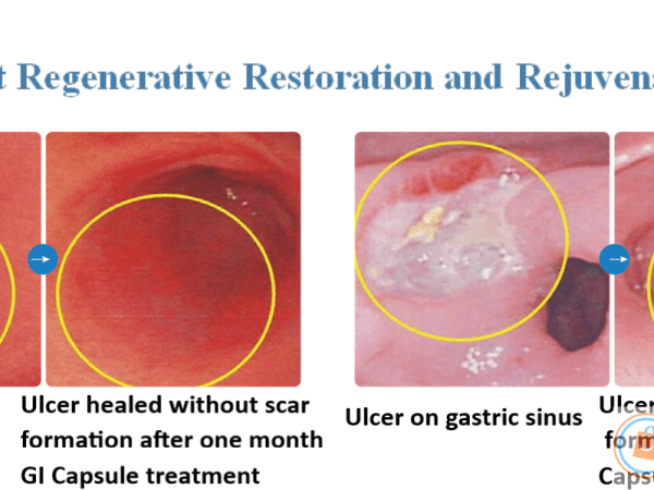 Gastric Ulcer treatment