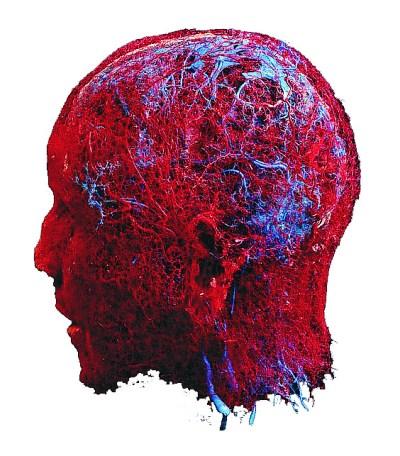 elaborazione vasi sanguigni della testa