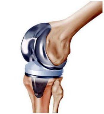 ginocchio artificiale