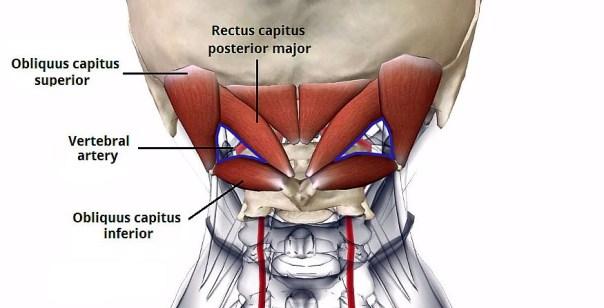 triangolo sub-occipitale e arteria vertebrale