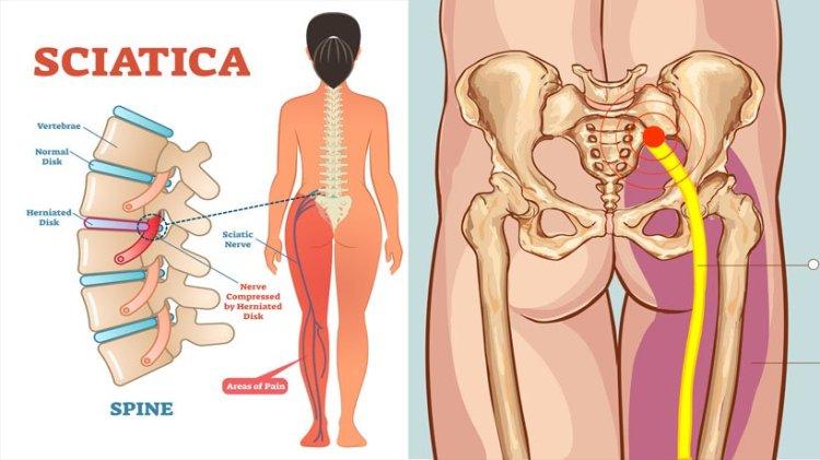 Sciatica Diagram - Running with Sciatic Pain