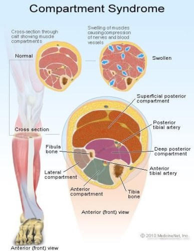 Anterior Compartment Syndrome Explained