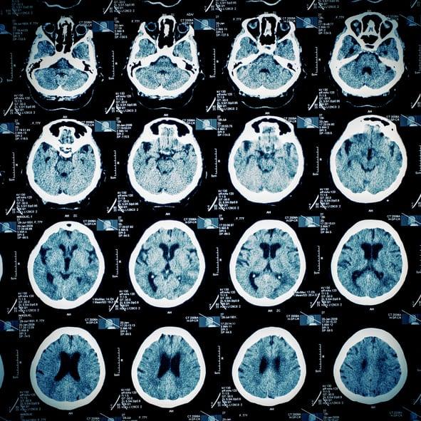 Traumatic Brain Injury – What Now?