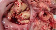 Endocardite Infecciosa – Doença em homossexuais