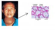 Bócio: Veja como evitar esta doença