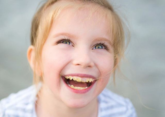 Why Do My Toddler's Teeth Look Discolored?