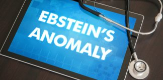 Ebstein's Anomaly in Kids