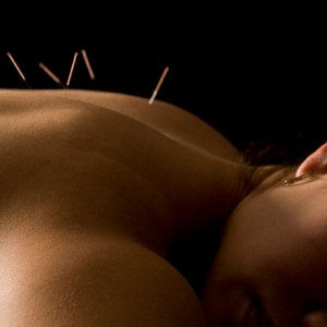 acupuncture treatment on womans back