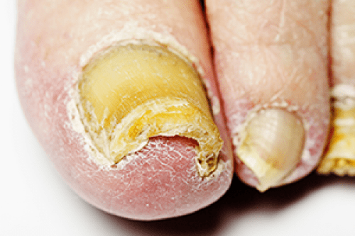 toenail-fungus-infection