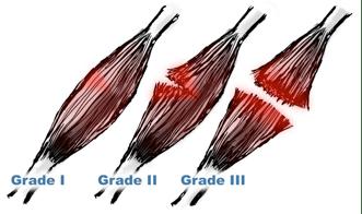 grade of sprain
