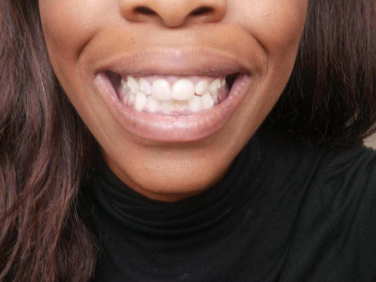 My Invisalign Progress and Invisalign Review| I got Invisalign clear braces| Find out more about the first few weeks Kitty and B