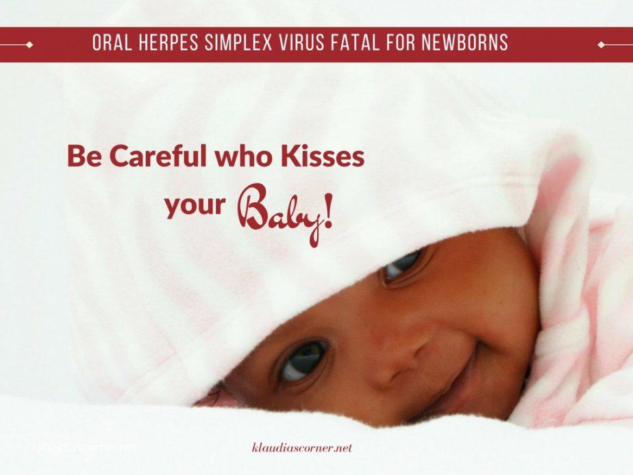 Oral Herpes Simplex Virus Fatal For Newborns- klaudiascorner.net