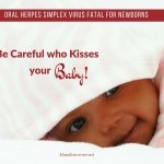 Oral Herpes Simplex Virus Fatal For Newborns