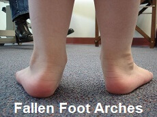 Flat feet are a common feature in those suffering from arthritis in the knee