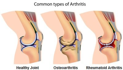 There are two types of arthritis in the knee: osteoarthritis and rheumatoid arthritis