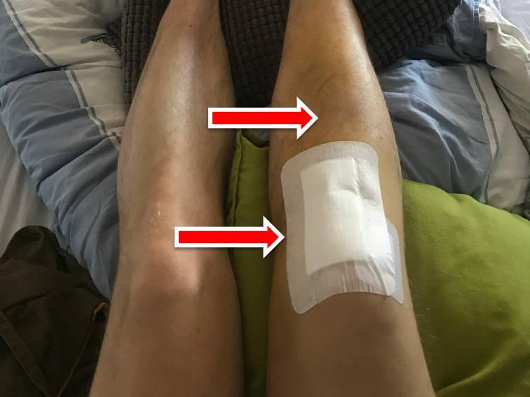 bluterguss nach knie op