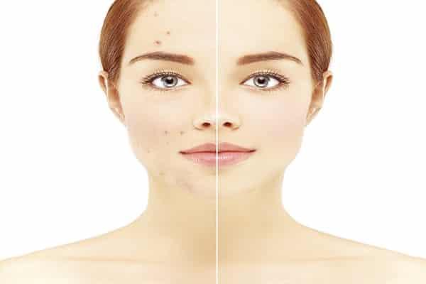 علاج حبوب الوجه والتخلص من آثار حب الشباب في يوم واحد كنوزي
