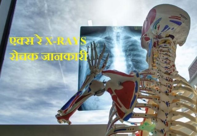what is x-ray in hindi