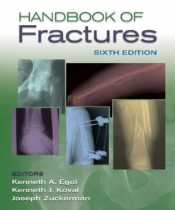 Handbook of Fractures-Sixth Edition