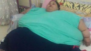 Maxi intervento di chirurgia bariatrica per una donna che pesa 500 kg Eman Ahmed Abd El Aty