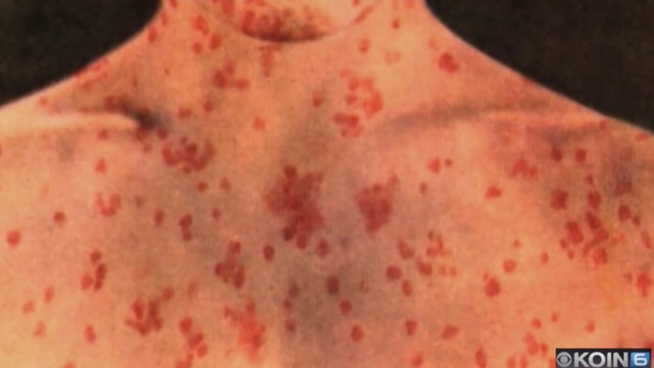 Case_of_measles_confirmed_in_Portland_ar_1_20180814002122