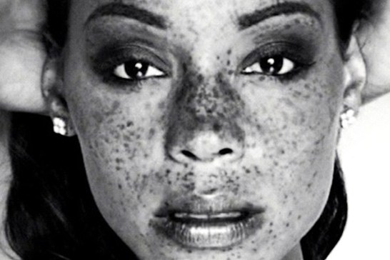 Freckles_African American_8