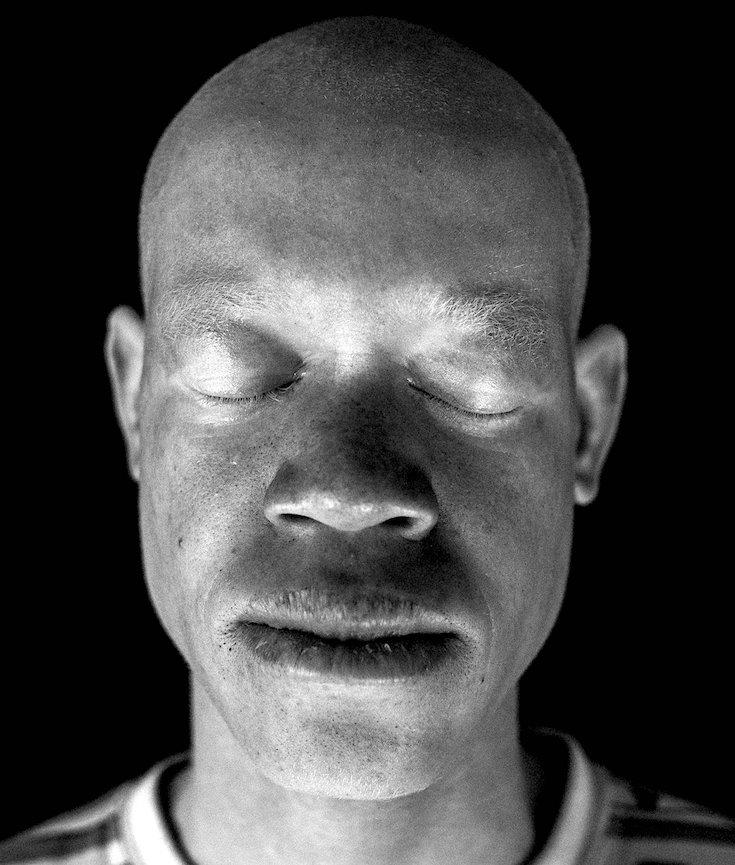 African Culture, Albinism, Racism, KOLUMN Magazine, KOLUMN
