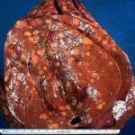 Jenis dan Gejala Kanker Hati Primer