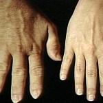 Gejala Akromegali Dan Pengobatannya