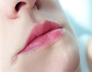 tips-ampuh-menghilangkan-flek-hitam-di-sudut-bibir