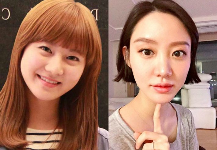 3 female idols that confessed they had plastic surgery but now