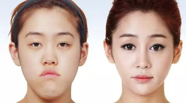 korean-plastic-surgery