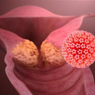 cancer-du-col-de-l-uterus