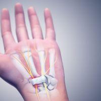 Τι πρέπει να γνωρίζετε για τις ορθοπαιδικές παθήσεις του χεριού;