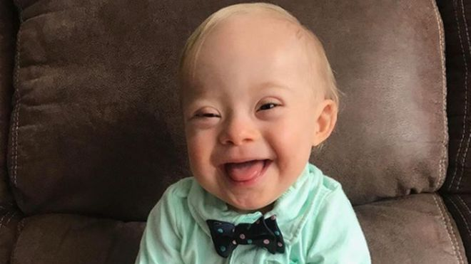 Today André Picard from the Globe and Mail cited my friend and colleague Sue Robin\u0027s blog as she considers whether having a baby with Down syndrome in ...  sc 1 st  Krista Ewert & Gerber is Only the Door to a Broader Conversation #Inclusion - One ...