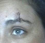 stitches (2)