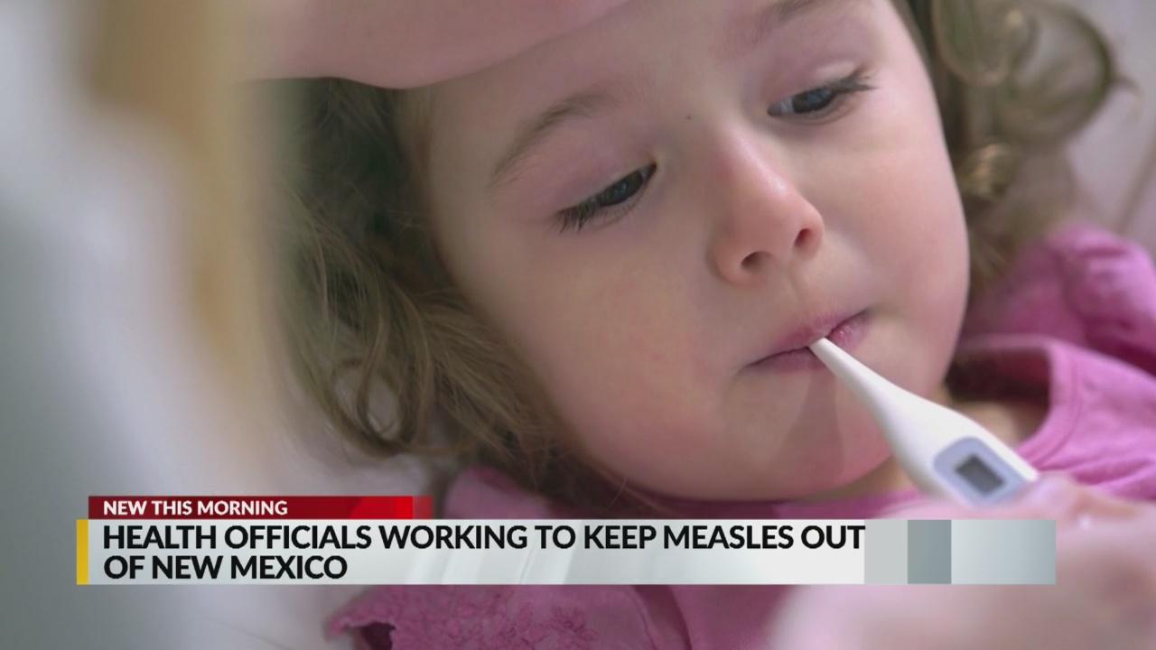 Measles_1557232028056.jpg