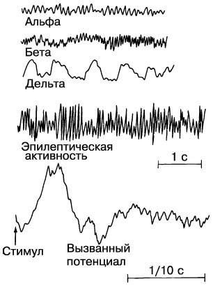 Aktiviti elektrik otak didaftarkan dengan bantuan Electroencephalographer. Keluk yang dihasilkan - elektroencephalograms (EEG) - mungkin menunjukkan terjaga yang santai (alpha gelombang), terjaga aktif (gelombang beta), tidur (gelombang delta), epilepsi atau tindak balas kepada insentif tertentu (disebabkan oleh potensi).
